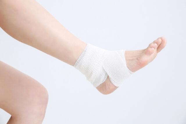 ねんざについて~早期対応が大切~   ねんざのイメージ画像